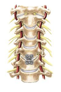 prestige cervical disc surgery